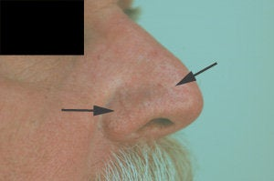 Vein removal on the nose with laser treatments