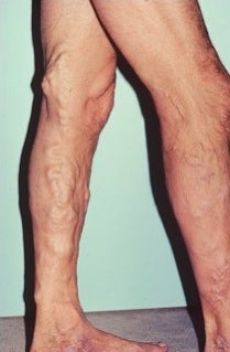 Phlebectomy Leg Vein Removal