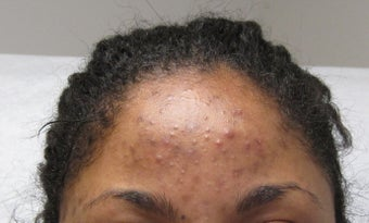 Vi Peel for acne and hyperpigmentation