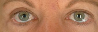 Botox for Wrinkle Treatment