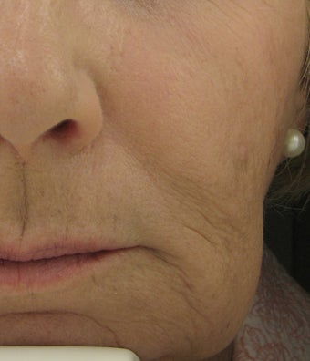 Radiesse for Nasolabial Folds and Marionette Lines