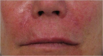 Juvederm to nasolabial folds