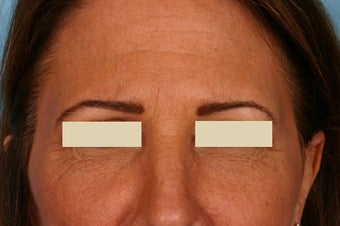 Frown lines treatment