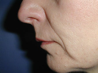 Radiesse for Nasolabial Folds