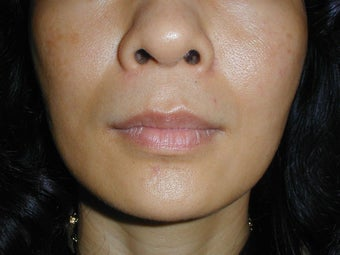 Radiesse in smile lines (Nasolabial Folds)