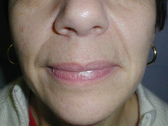 Restylane for smile lines (nasolabial folds)