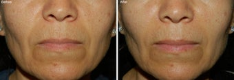 Fillers for Nasolabial Folds