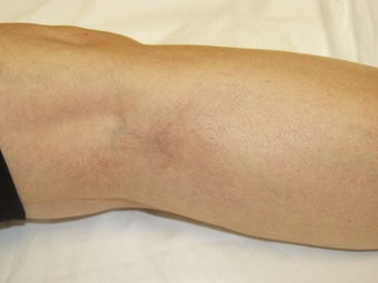 Laser vein removal on legs