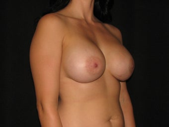 600 cc saline breast implants
