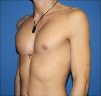 Pectoral Augmentation, Pec Implants