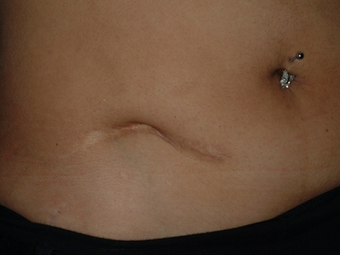 Scar revision of appendectomy scar