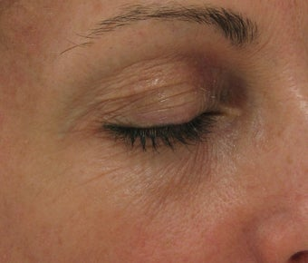 Fraxel re:pair CO2 laser resurfacing for eyes (Nonsurgical Blepharoplasty)