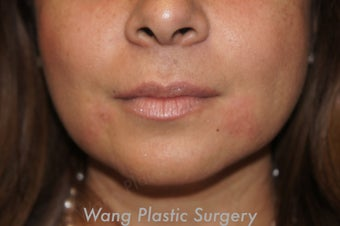 Juvederm to improve marionette lines