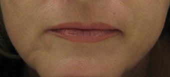 Fraxel re:pair (repair) for lip lines and lip enhancement