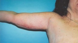 44 year old woman who underwent an arm lift