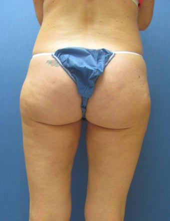 Liposuction of Buttock and Thighs