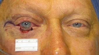 Eyelid skin cancer surgery
