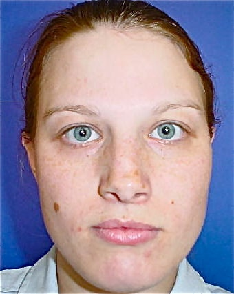 Septoplasty and Rhinoplasty, Nose surgery