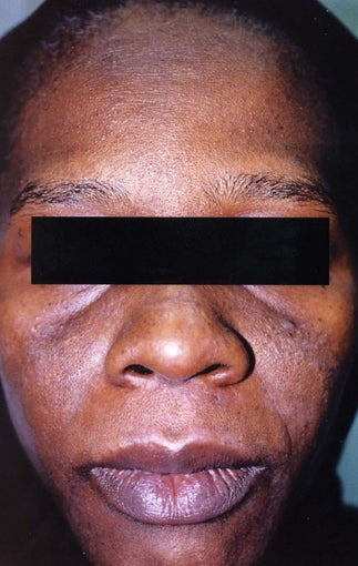 African American Woman 30 to 40 years old with hyperpigmentation