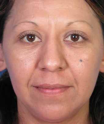 Mole Removal Example from Left Cheek