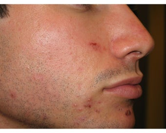 Intense Pulsed Light for Acne