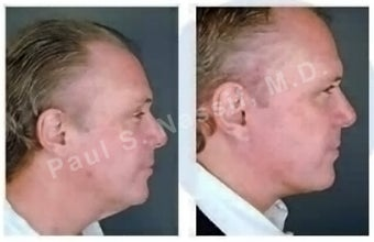 Lower Face and Neck Lift.