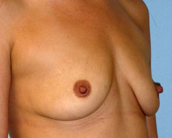 Breast Augmentation Restores Volume