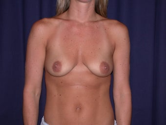 Bilateral Breast Augmentation with Extended Creasant Mastopexy's