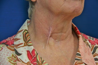 Tethered Neck Scar Revision