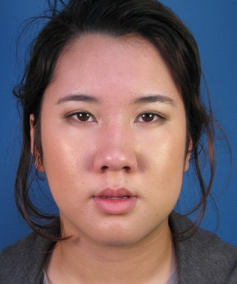 Asian Rhinoplasty Surgery Ethnic Rhinoplasty Example