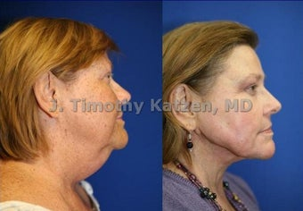 Neck liposuction and TCA chemical peel
