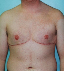 41-Year-Old Male Breast Reduction