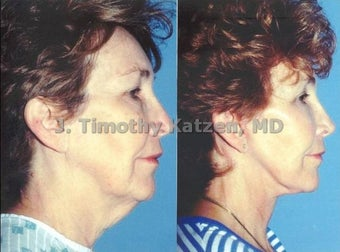 Neck lift and face lift after massive weight loss