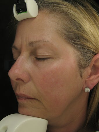 Fraxel Dual Laser for Melasma, Pigmentation, and Rosacea