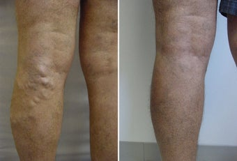 Varicose vein endovenous laser treatment