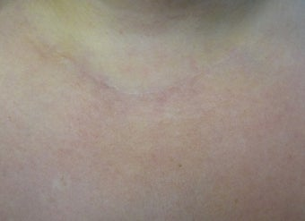 Scar Revision Procedure for Thyroid Keloid Scar on the Neck and Chest