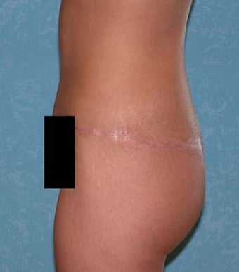 Circumferential Body Lift with Buttock Augmentation