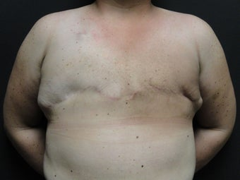 Flap-based breast reconstruction - DIEP
