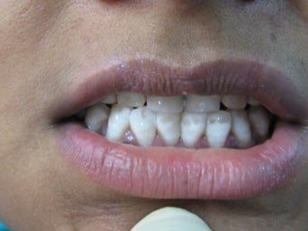 Laser Speed Tooth Whitening