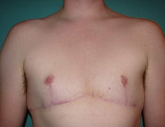 FTM chest masculinization in Chicagoland