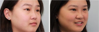 Double eyelid incisional surgery - before & 2 months post op