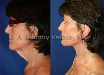 Neck liposuction only