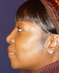 Rhinoplasty Side View