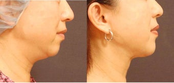 Chin and Jaw liposuction with SlimLipo