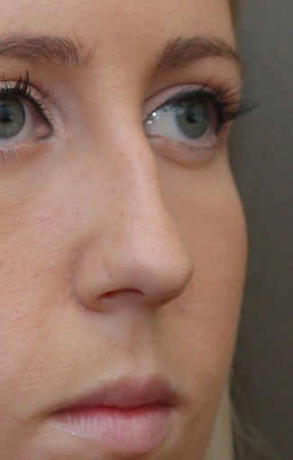 Rhinoplasty - Refine tip, Widen Dorsum