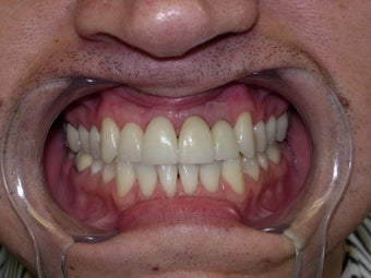 45 year old male patient - cosmetic veneers