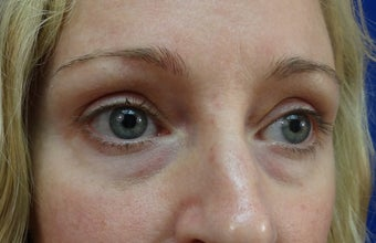 Lower eyelid hyaluronic acid (Restylane)