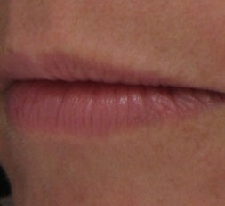 Lip Enhancement with Juvederm Ultra