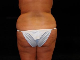 Brazilian Buttocks Lift