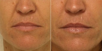 Smile lines treated with Restylane